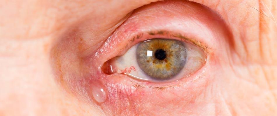 Lavaggio delle vie lacrimali - occhio di un'anziana donna